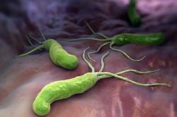 Бактерия Хеликобактер Пилори - возбудитель полипа желудка