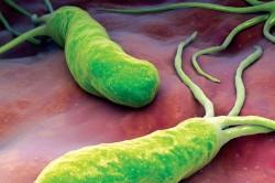 Helicobacter pylori - микроорганизмы, разрушающие слизистую оболочку