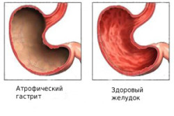 Схема атрофического гастрита