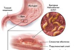 Язвенные заболевания - причина постоянной отрыжки