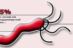 Бактерия Helicobacter pylori - основная причина язвы