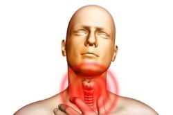 Боль в горле - симптом рефлюкс гастрита