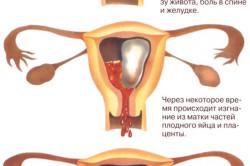 Выкидыш в результате метеоризма у беременных