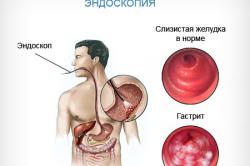Эндоскопия эрозивного гастрита
