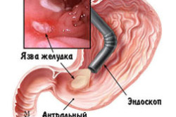Фибраскопия-обследование желудка