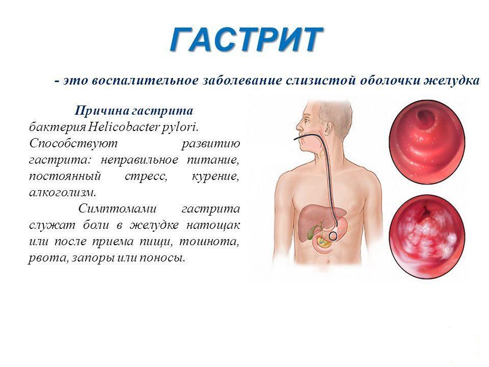 Папилломы на интимных местах симптомы фото