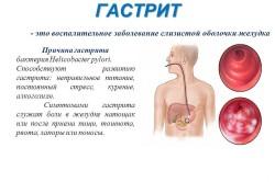 Симптомы при гастрите