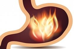 Изжога при гастроэзофагеальной рефлюксной болезни