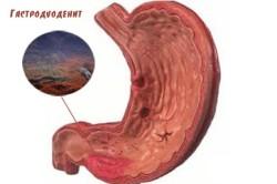 Схема гастродуоденита