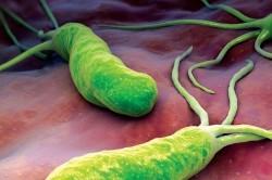 Бактерии Helicobacter - причина развития инфекционного гастрита