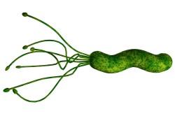 Helicobacter pylori - причина возникновения гастрита