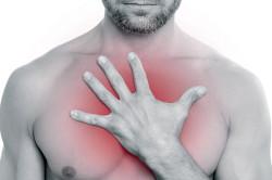 Изжога -признак гастродуоденита