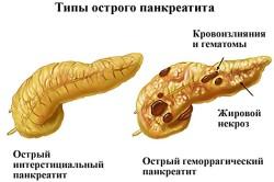 Панкреатит - противопоказание к приему настойки прополиса