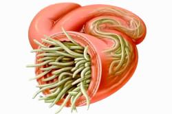 Паразиты в кишечнике - причина вздутия