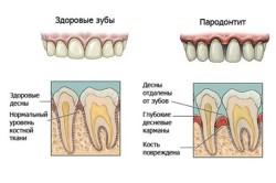 Пародонтит - причина запаха изо рта