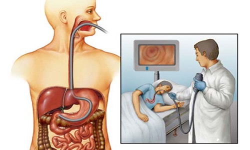 Гастроскопия желудочно кишечного тракта