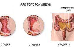Рак толстой кишки - причина вздутого живота