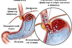 Схема недостаточности кардии желудка