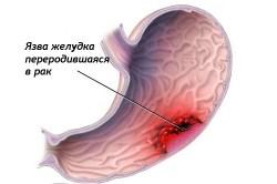 Схема рака желудка