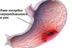 Язва желудка и рак как осложнение гастрита